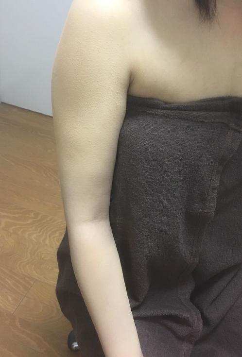 タトゥー隠し after